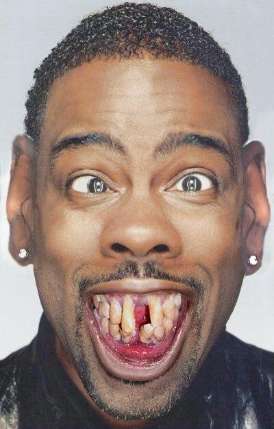 Самые смешные зубы